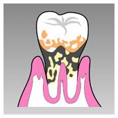 歯のイラスト