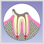 歯根のイラスト